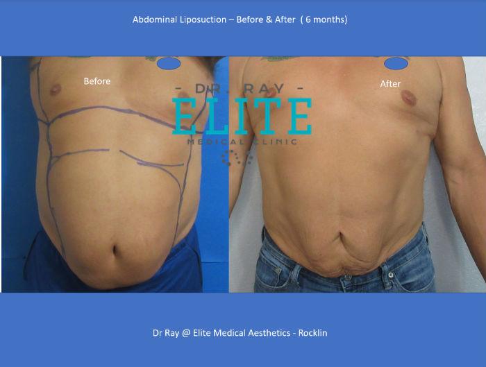 Liposuction Vaser Abdomen BEst Liposuction by Dr Ray Rocklin Elite Medical jpg